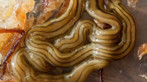 Analisi su segni di parassiti in un organismo