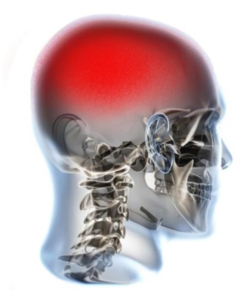 La scoperta dei medici di Torino rivoluziona la lotta al mal di testa