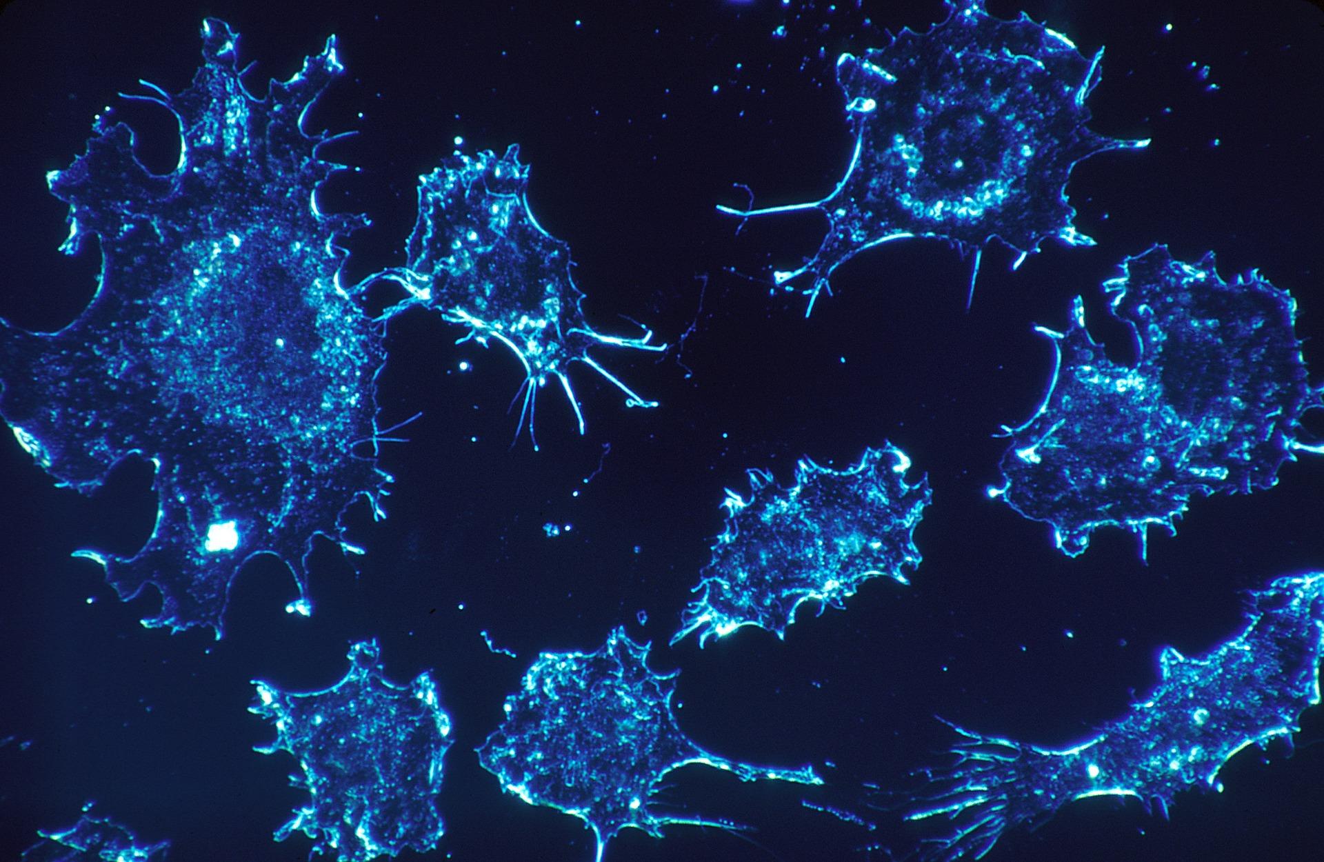 """Tumori, la scoperta italiana: trovate le """"cellule disertori"""""""