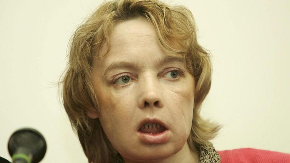 È morta Isabelle, prima donna sottoposta al trapianto del viso