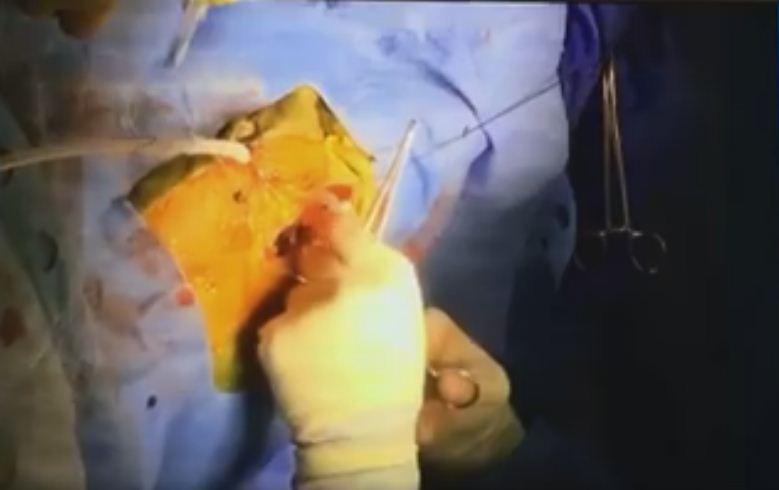 Neonato trapiantato al cuore: genitori pubblicano diretta su facebook