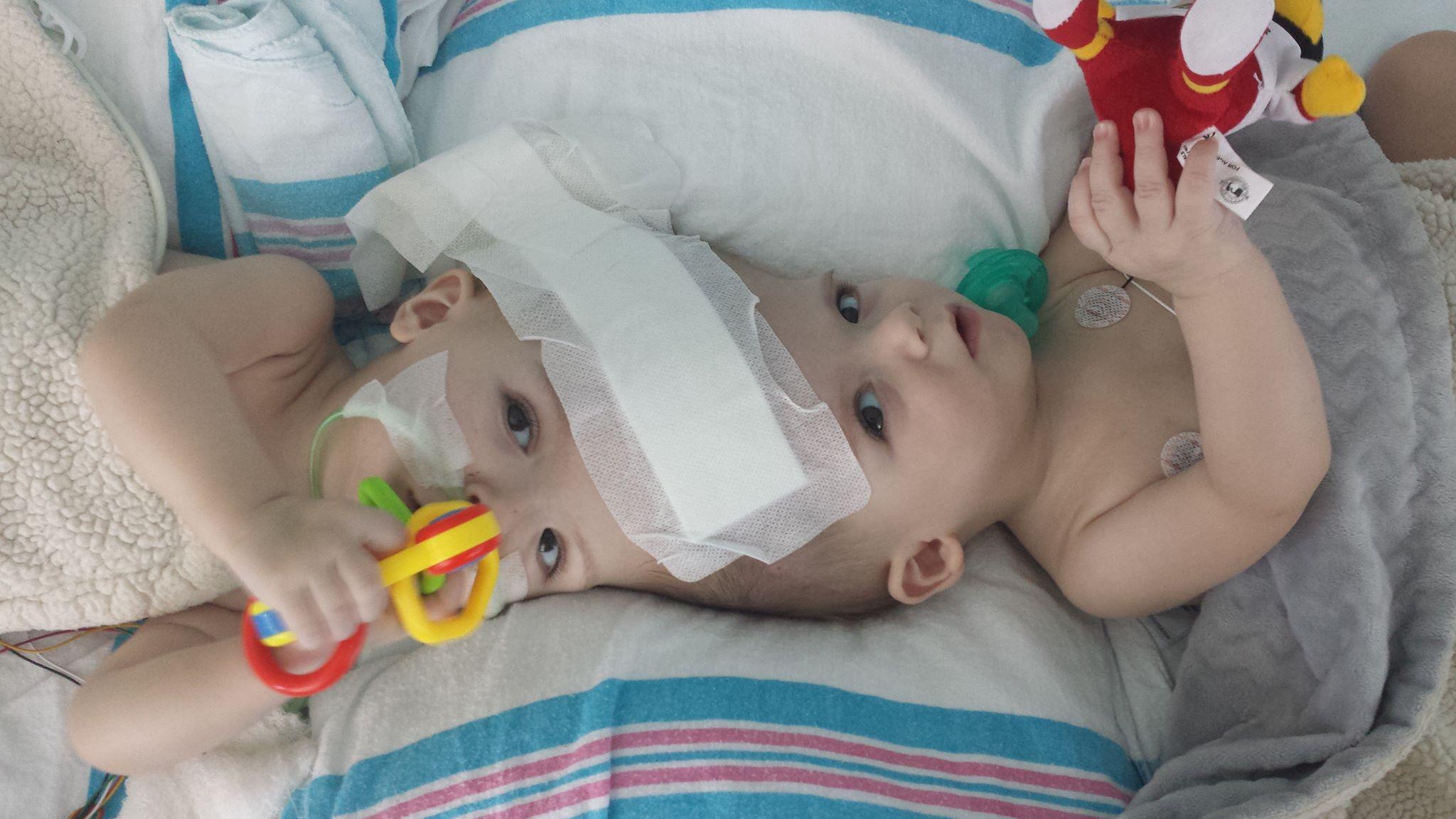 Usa, due gemelli siamesi separati dopo 27 ore di intervento