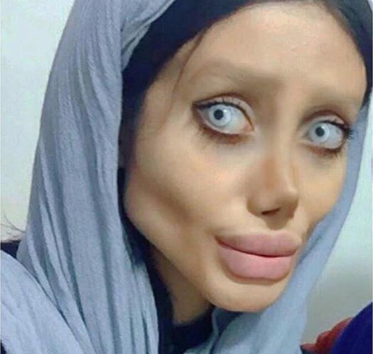 Angelina Jolie In Iran >> Tre anni, cinquanta interventi per somigliare a Angelina Jolie