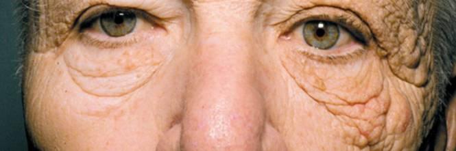 Quando la pigmentazione su una faccia scende