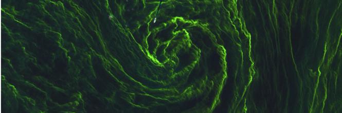 La tempesta di alghe nel Mar Baltico 1