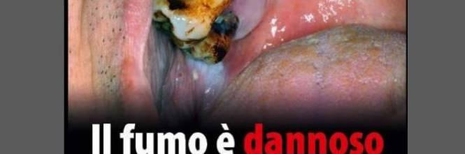 Le foto choc sui pacchetti di sigarette 1