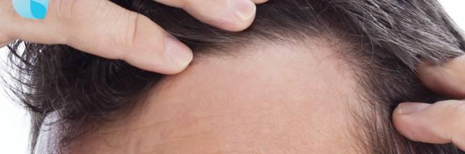 Cortisone e diradamento capelli