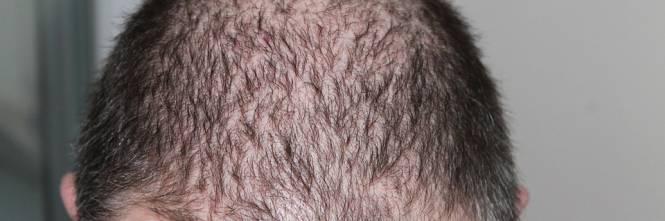 Cura della calvizie  nell 80% dei pazienti i capelli ricrescono fc3261cefb13