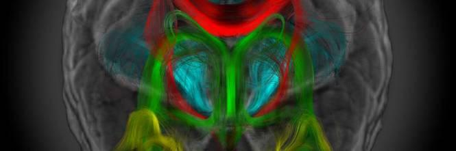 Le immagini della risonanza magnetica trasformate in opere d'arte 1