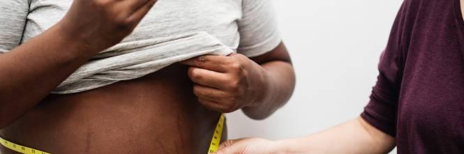come perdere peso nella favola 100