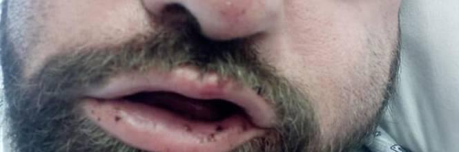 Taranto, le immagini dell'uomo in ospedale dopo l'aggressione 1