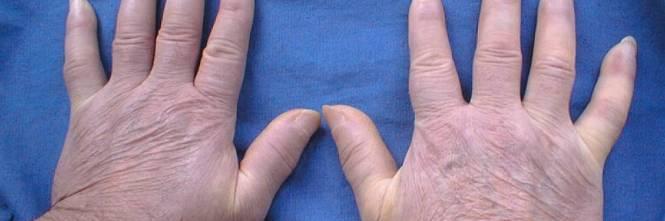 Lichen Sclerosus dei genitali - Humanitas