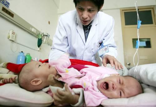 Sulle gemelline siamesi   non decida solo la scienza  ma si ascolti anche l'etica