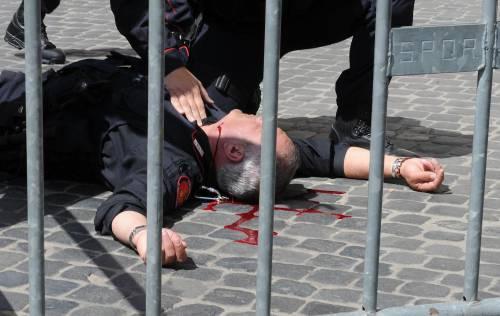 I carabinieri sono eroi soltanto se bloccati in un letto d'ospedale