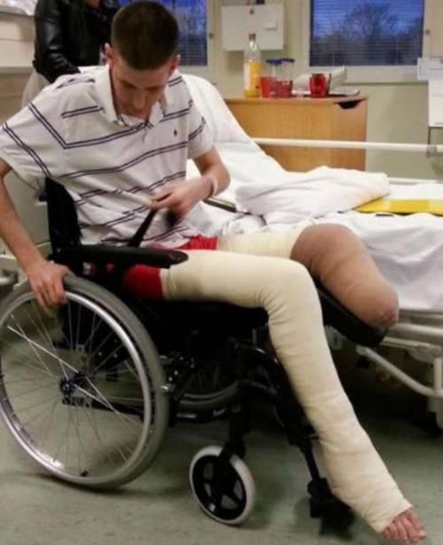 A una festa gli amici gli danno fuoco e lui perde la gamba