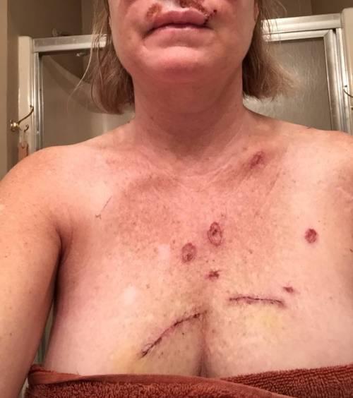 Donna con cancro alla pelle 2