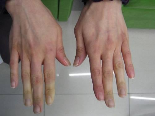 Avete le mani blu e pensate sia il freddo? Ecco la malattia che potreste avere