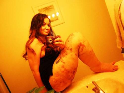 """Usa, terribile malattia ha fatto crescere la sua gamba 3 volte il normale: """"Non ho mai fatto sesso"""""""