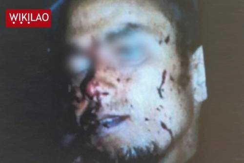 La foto del cadavere di Mohamed Lahouaiej Bouhlel 2