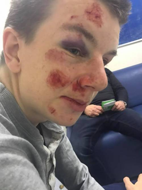 Ragazzo autistico pestato dai bulli per cinque sterline