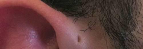Buchi o rigonfiamenti all'orecchio? Ecco cosa sono