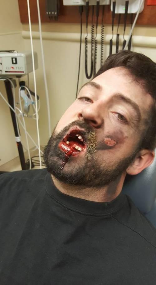 Esplode la sigaretta elettronica: ha gravi ustioni e perde 7 denti