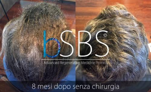 Quali alternative ci sono al trapianto di capelli  La storia insegna che il  solo trapianto di capelli non può risolvere la calvizie 6088fb0ce5f7