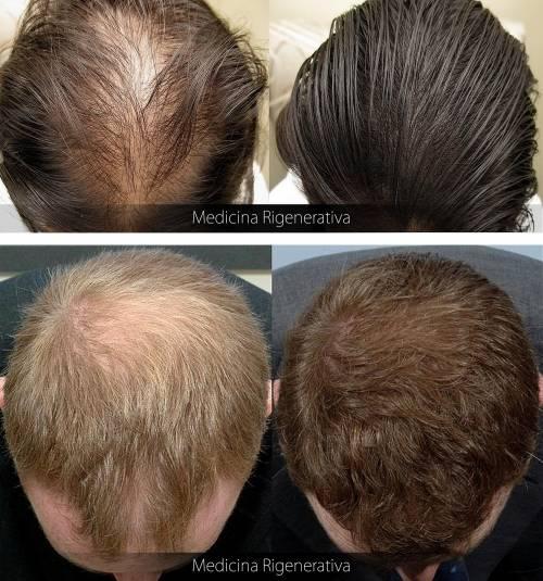 well known new product website for discount Perdita di capelli, ecco le nuove terapie rigenerative ...