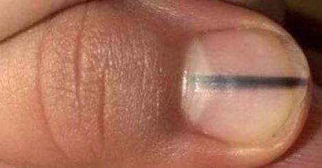 """Ha una riga nera sotto l'unghia. La scoperta: """"È un melanoma"""""""