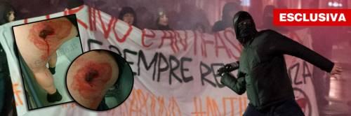 Torino, bombe antagoniste con i chiodi: agente trafitto alla gamba