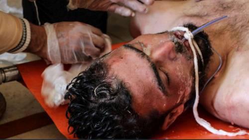 Douma: solo polvere (vera e mediatica)