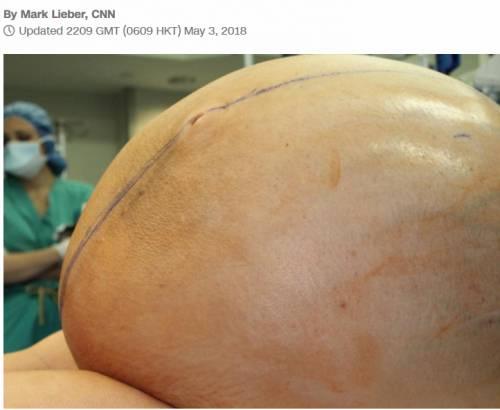 Rimosso un tumore ovarico grande come un uomo adulto