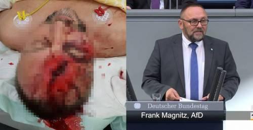 Germania, aggredito a Brema deputato dell'Afd