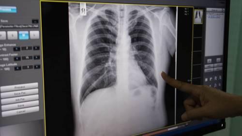 Reggio Emilia, secondo caso di tubercolosi: colpito bimbo delle elementari