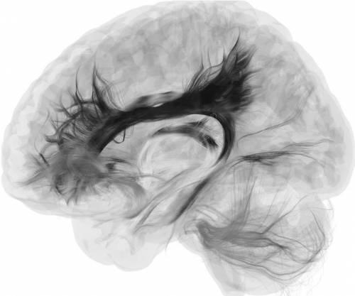Le immagini della risonanza magnetica trasformate in opere d'arte 2