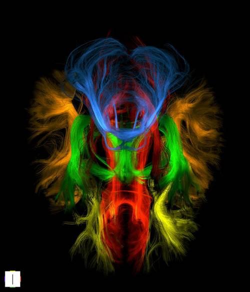 Le immagini della risonanza magnetica trasformate in opere d'arte 4