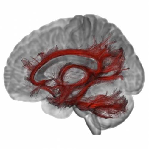 Il radiologo che trasforma le risonanze magnetiche al cervello in opere d'arte