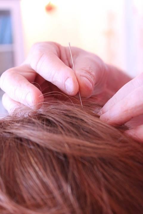 L'agopuntura può servire ad alleviare i disturbi della menopausa