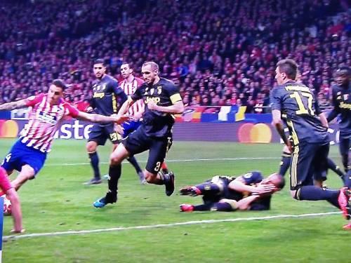 La sceneggiata di Bonucci: finge di aver subito un colpo al volto per far annullare il gol