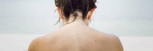 Allergia al sole, quali sono i sintomi e come si cura