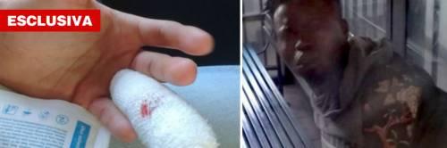 Torino, nigeriano morde poliziotto e gli strappa la falange