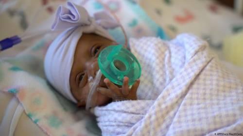Salva Saybie, bimba miracolo È lei la più piccola del mondo
