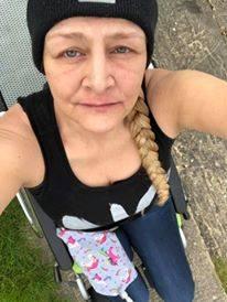 Joanne, invalida dopo il morso della zecca 5