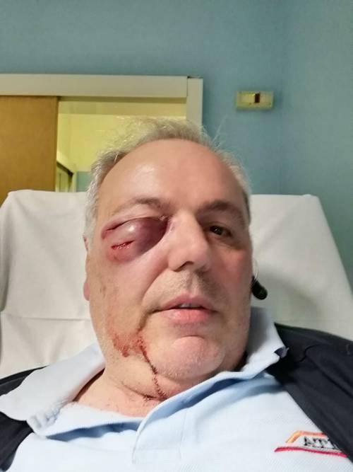 Milano, autista picchiato a sangue da un ubriaco