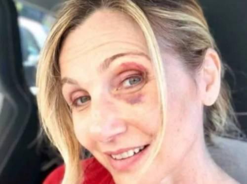 "Incidente per Lorella Cuccarini: ""Per colpa di una buca"""