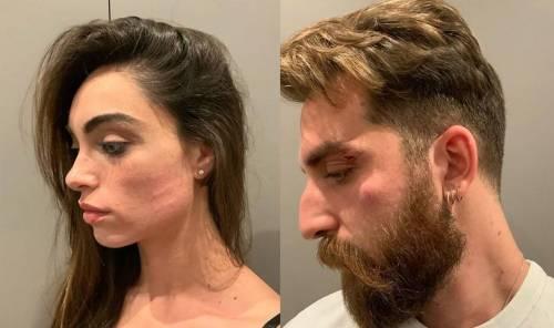 """Lorella Boccia e Niccolò Presta derubati e minacciati con un coltello: """"Uomini di m..."""""""