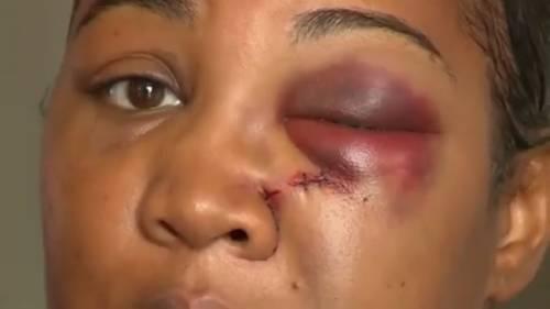 Manager McDonald's colpisce cliente con frullatore rompendole il naso