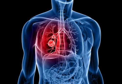 Tumore al polmone, nuova terapia per pazienti con mutazione del gene Egfr