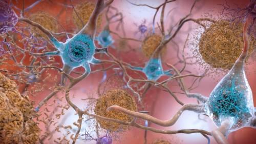 Alzheimer, il litio a piccole dosi potrebbe fermarlo