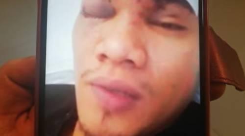 Cagliari, filippino picchiato su un bus perché scambiato per cinese